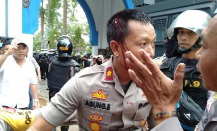 Ketgam : Seorang polisi terluka saat mengamankan aksi, akibat di lemparan batu oleh massa aksi/foto : Istimewa